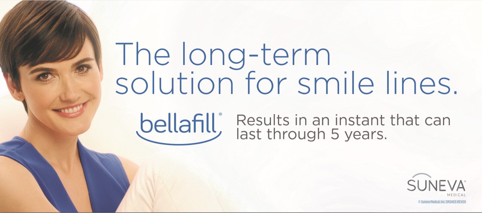 Bellafill for Smile Lines