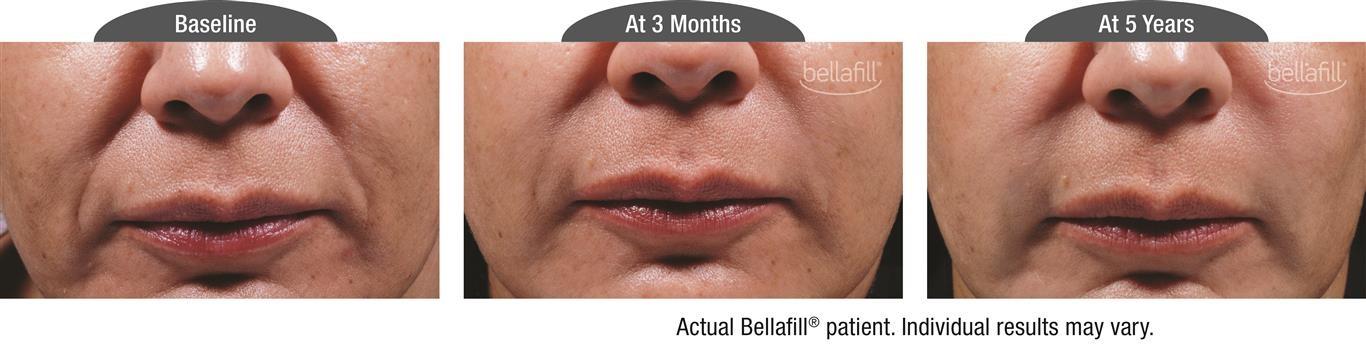 Bellafill for Smile Lines before and after